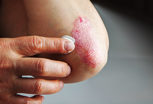 493ss_thinkstock_rf_treating_eczema_on_elbow