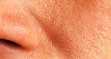 کوچک کردن منافذ پوست